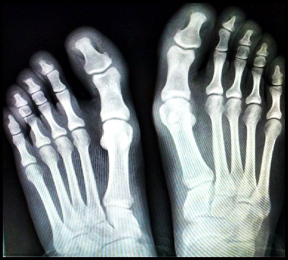 foot-rentgen